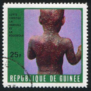 GUINEA CIRCA 1970: stamp printed by Guinea, shows Sick child, circa 1970