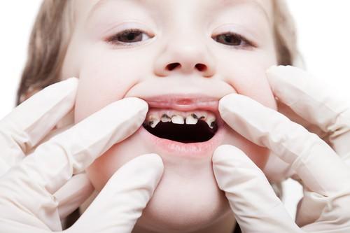 Próchnica zębów - choroba stara jak świat