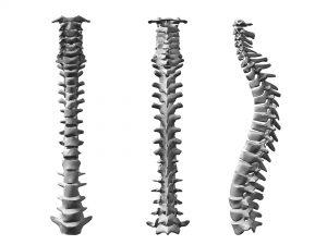 Dysrafie kręgosłupa to wady wrodzone