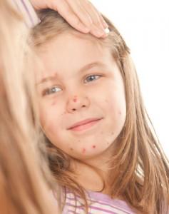 Trudności szkolne często sa wynikiem neuroinfekcji, a te z kolei bywają powikłaniem chorób zakaźnych
