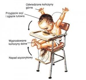 Napady epilepsji u niemowląt