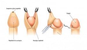 chirurgiczne-leczenie-stulejki-rysunek-pogladowy_14500_h500