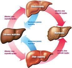 wirus zapalenia wątroby typu C