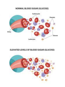 Prawidłowy poziom cukru we krwi
