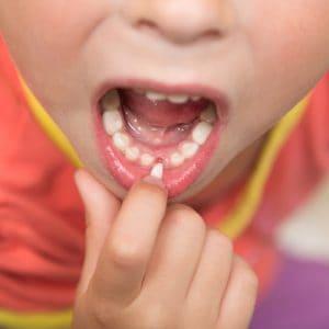 Ząb mleczny sie rusza