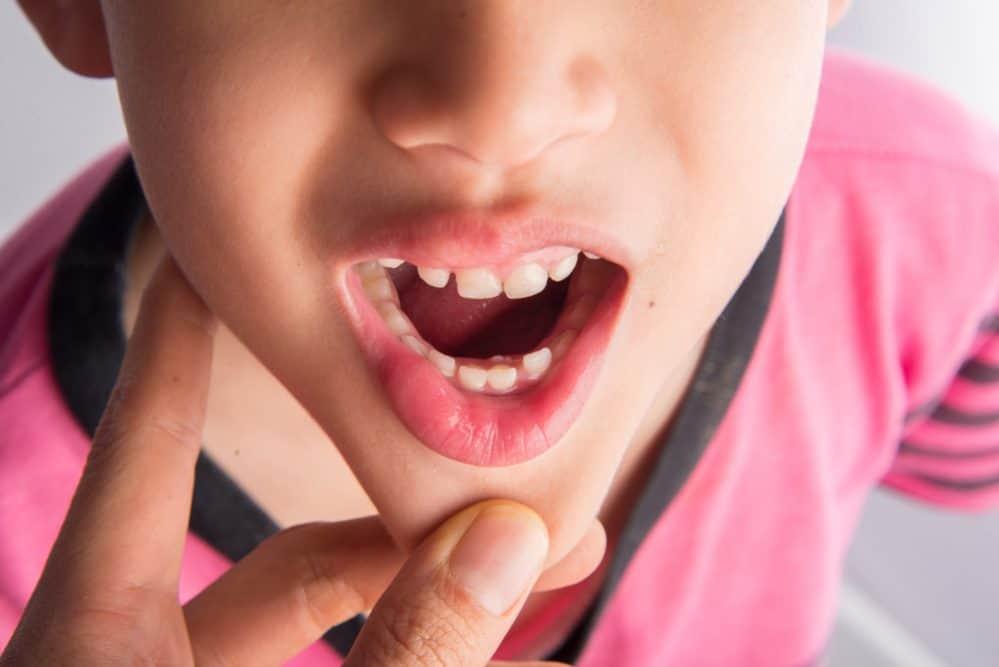 Stałe zęby - kiedy wyrastają?
