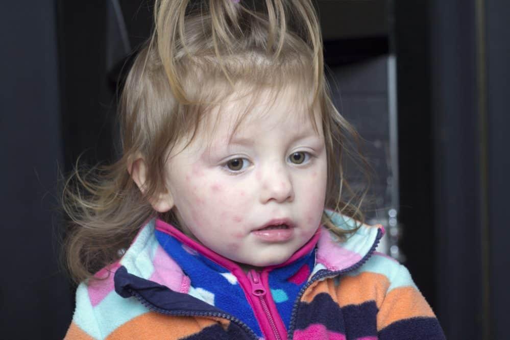 Wysypka u dziecka - jak leczyć?