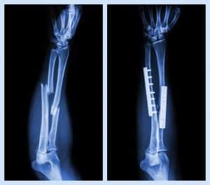 Powtórne złamania tej samej kości zdarzają się, gdy nie utowrzy się callus.