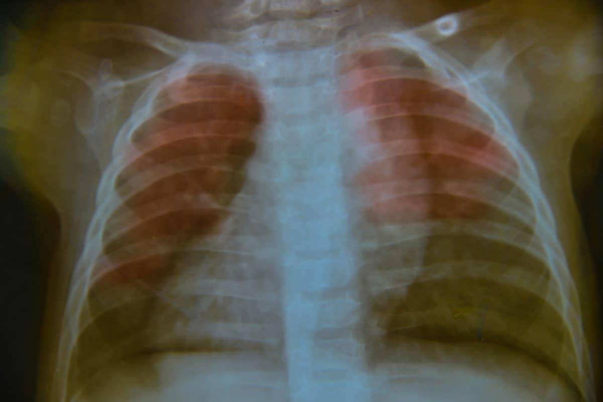 Płuca dziecka - jak się rozwijają?