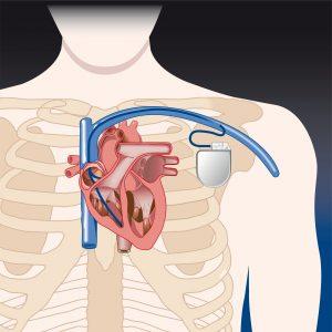 Rozrusznik serca powoduje ograniczenia w życiu.