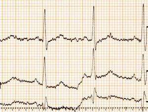 Kardiomiopatia to groźna choroba