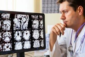 Choroby rzadkie to takie, które dotykają 1na 10 tys. osoób