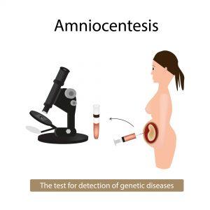 Badania prenatalne pod kątem choroby Fabry'ego nie muszą być wykonywane u każdej ciężarnej kobiety