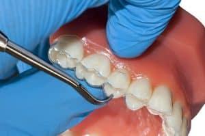 Aparat ortodontyczny stały można stosowac także u dorosłych.