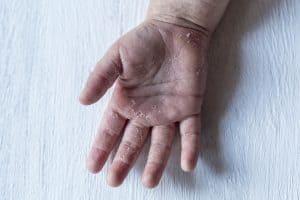 Szkarlatyna, płonica - choroba wywołana paciorkowcem, obciążona ryzykiem powikłań