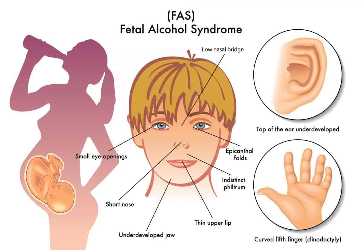 Lalka z syndromem FAS służy uświadamianiu młodzieży czym grozi picie alkoholu podczas ciąży.