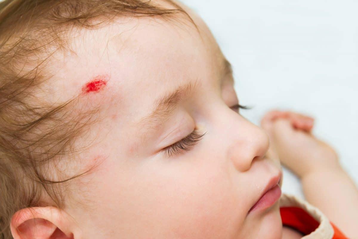 Urazy głowy u dzieci -  czym grożą? Jak reagować?