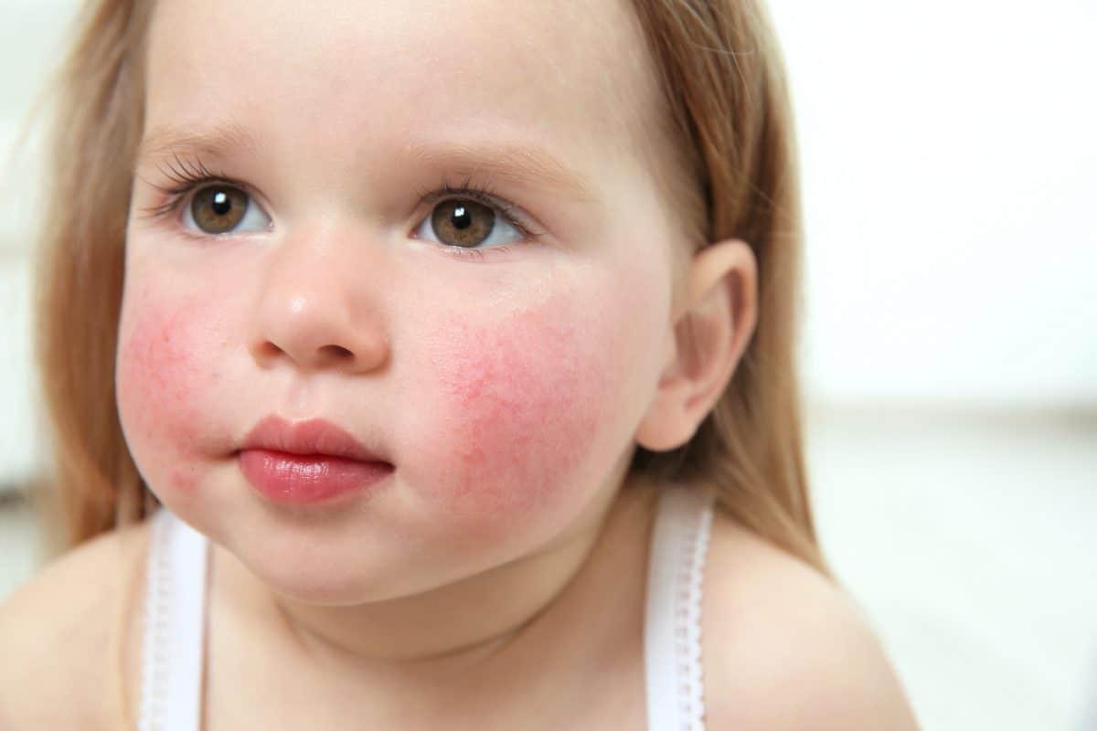 Czym jest alergia? Odpowiedzią systemu immunologicznego na kontakt organizmu z konkretną substancją.